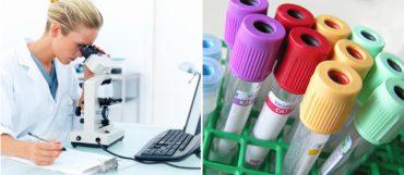 Лабораторная диагностика инфекций ППП